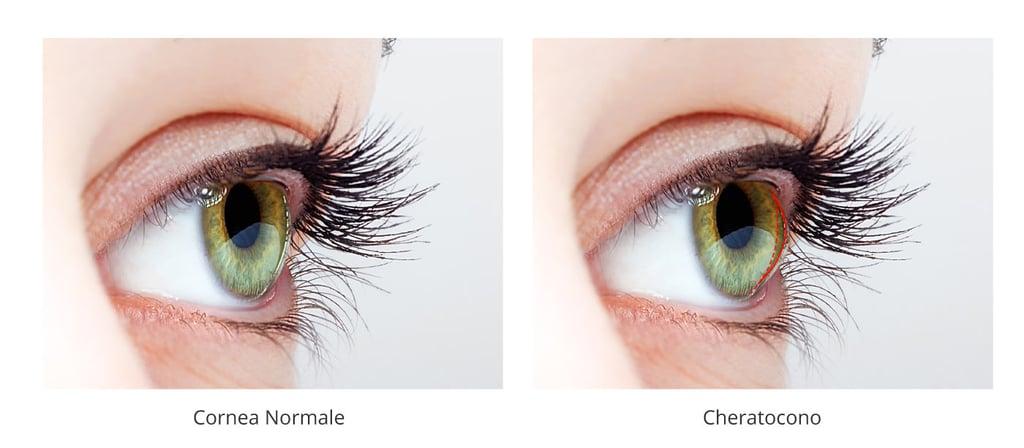 Ciaroni astigmatismo cheratocono