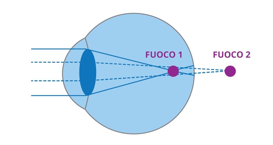 Ciaroni-astigmatismo