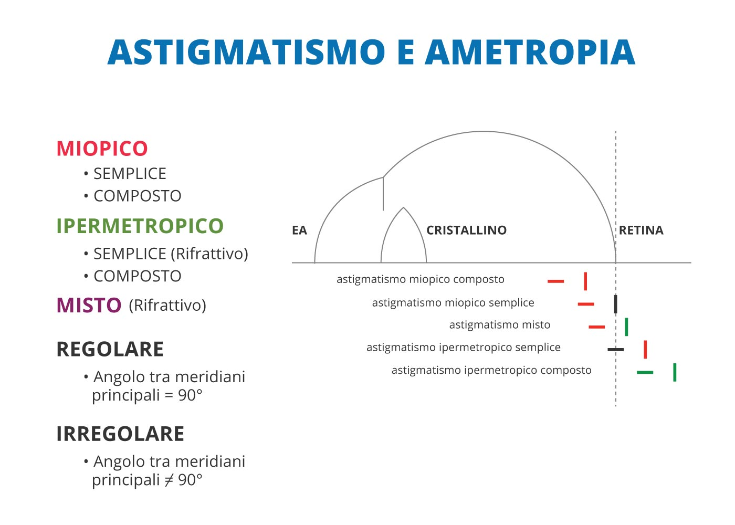 cos'è l'astigmatismo - astigmatismo e ametropia