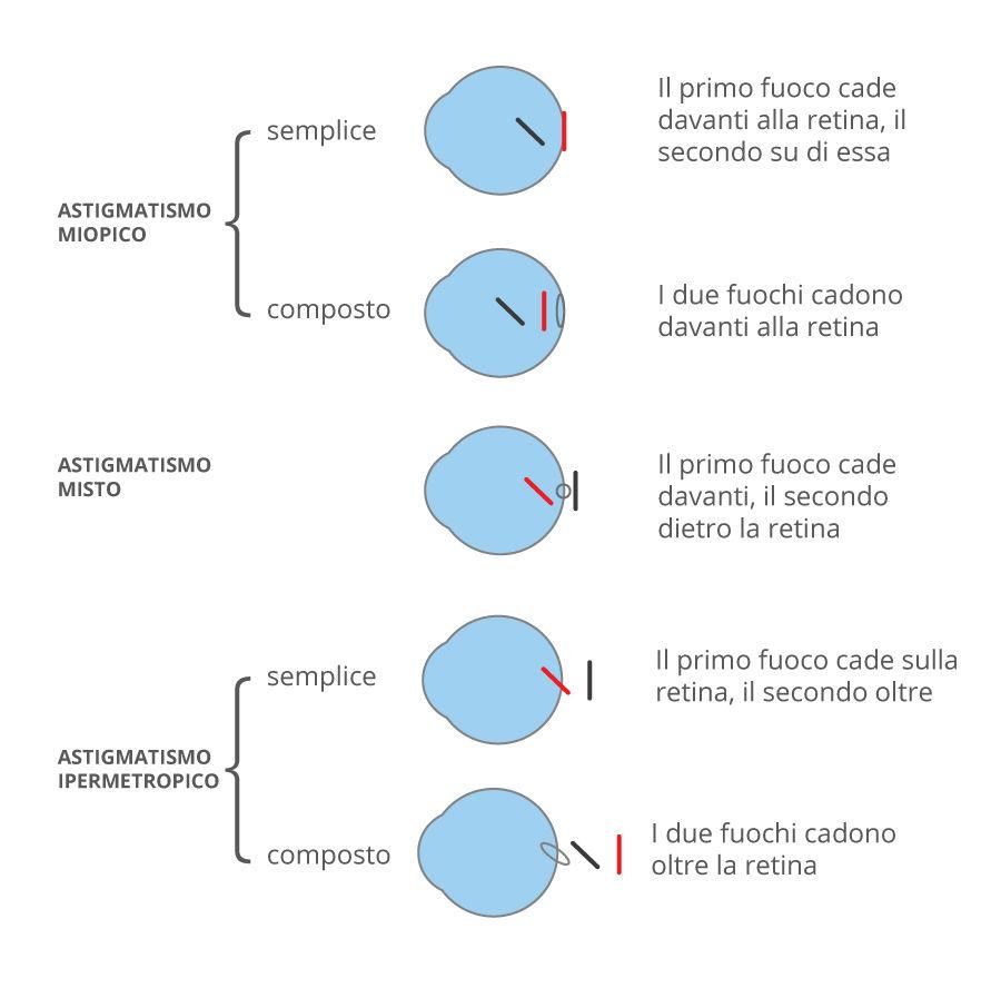 Tipologie di astigmatismo Ciaroni