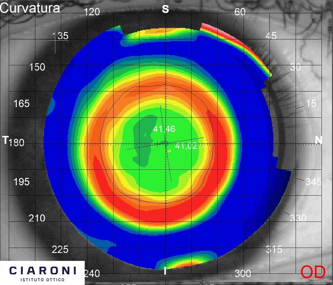 ciaroni-mappa-corneale-post-trattamento