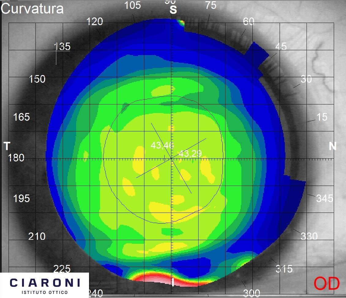 ciaroni-mappa-corneale-pre-trattamento