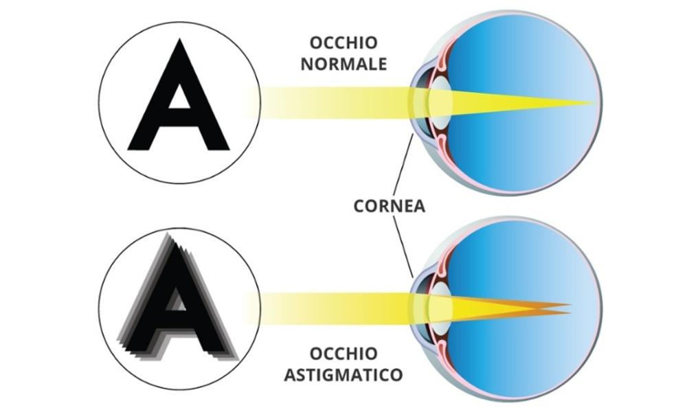 cornea occhio astigmatico