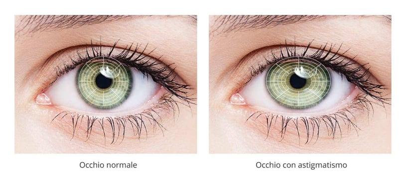 occhio con astigmatismo
